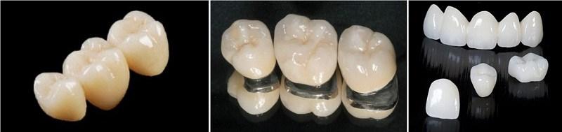 Tìm hiểu về 3 loại bọc răng sứ thịnh hành nhất hiện nay