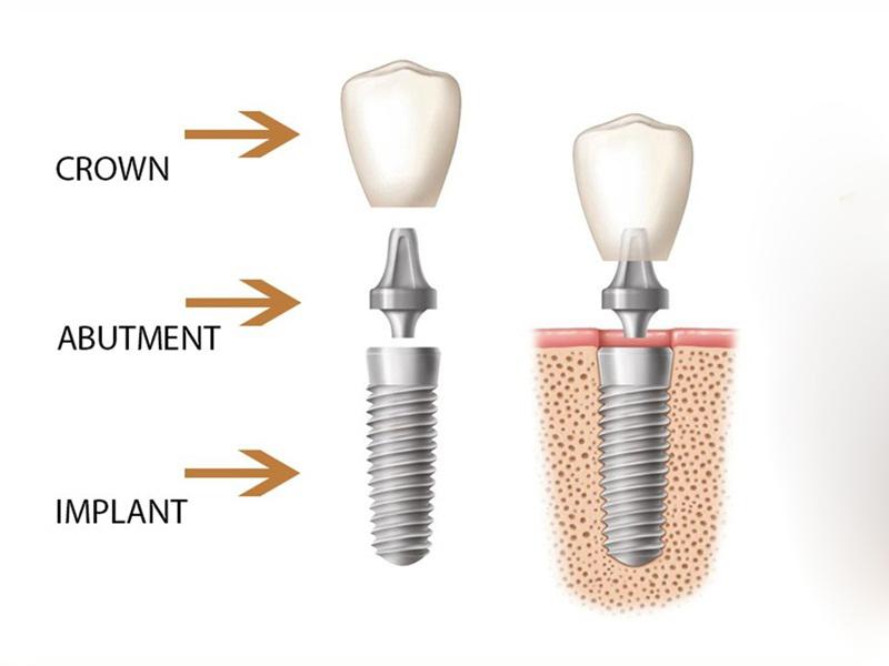 Giải đáp những thắc mắc thường gặp về cấy ghép implant răng