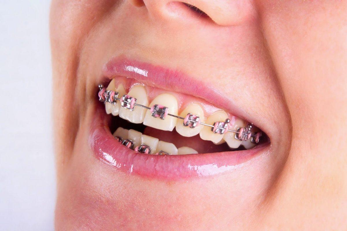 Trước khi niềng răng cần chú ý những vấn đề gì?