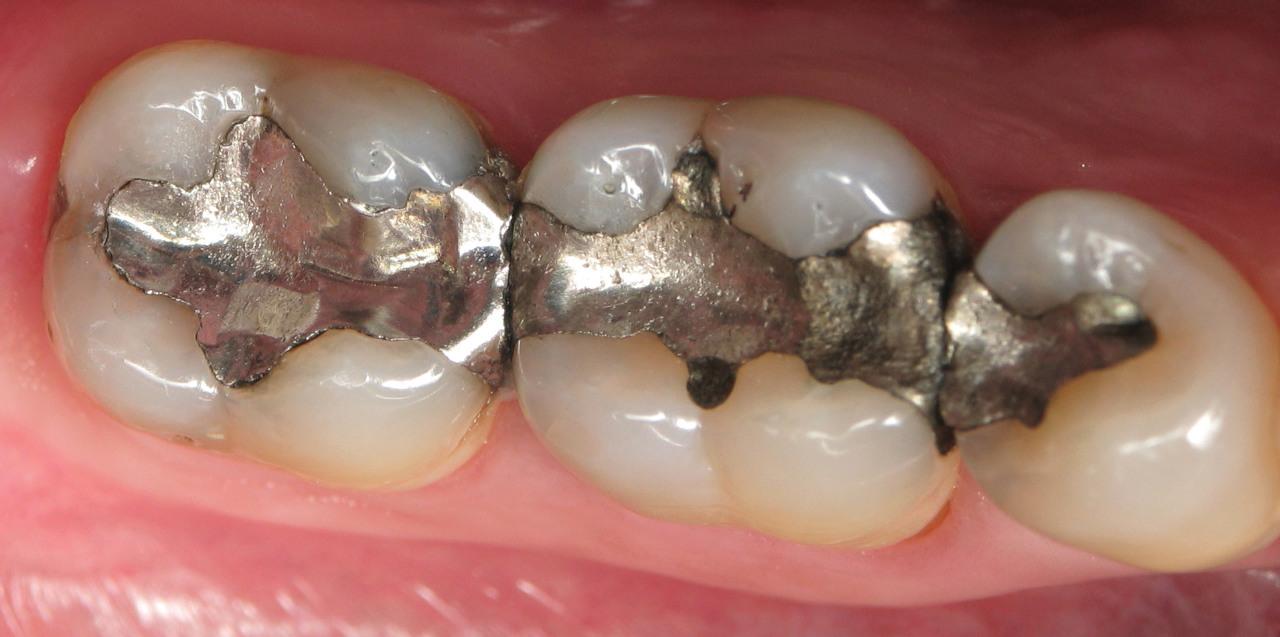 Những vật liệu trám răng được dùng phổ biến nhất hiện nay