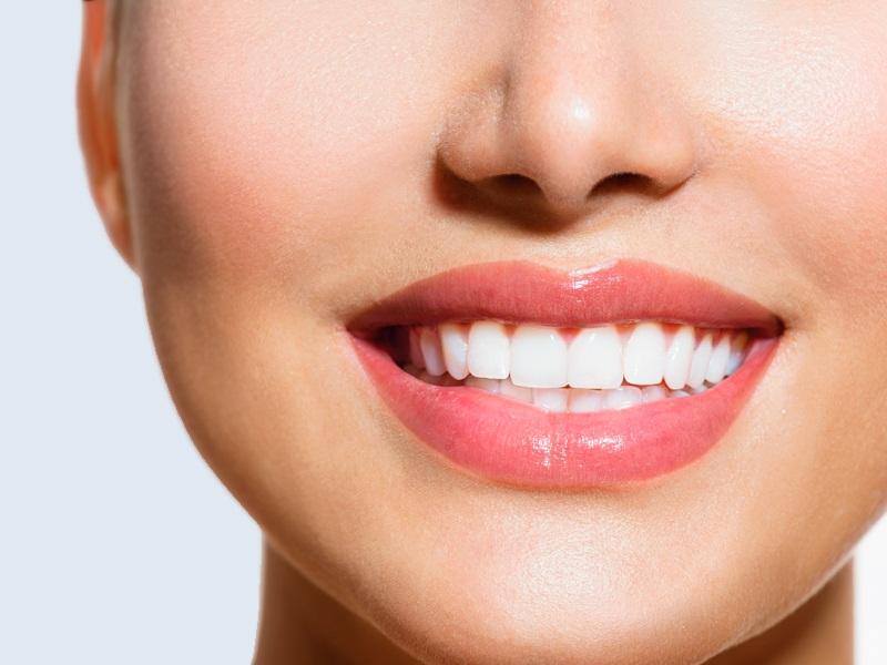 Cầu răng sứ được chia thành những loại nào?