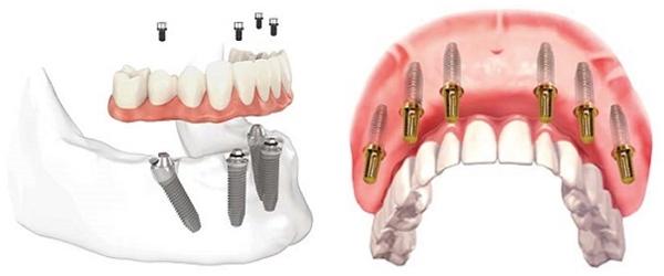 Tìm hiểu về kỹ thuật cấy ghép implant răng All on 4 và All on 6