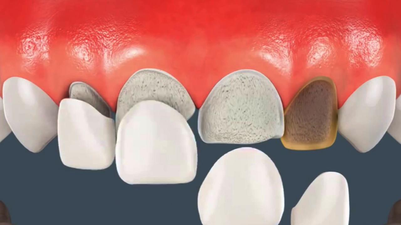 Bọc răng sứ loại nào tốt nhất trên thị trường Năm Nay - 2018? 1