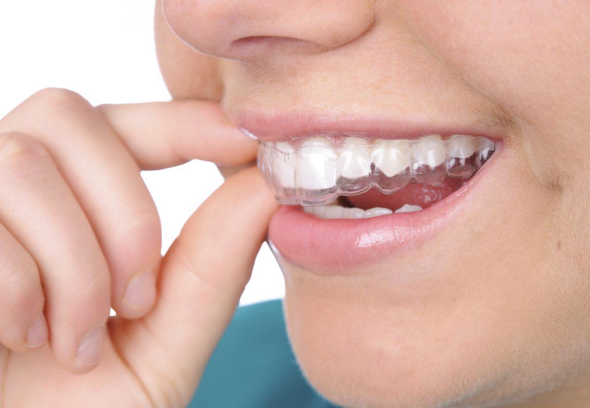 6 ưu điểm vượt trội của niềng răng không mắc cài eCligner