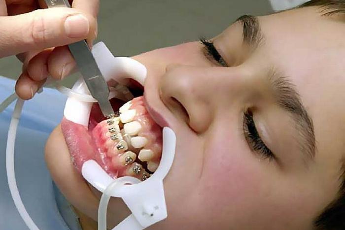 Hiểm họa khôn lường từ dịch vụ niềng răng giá rẻ