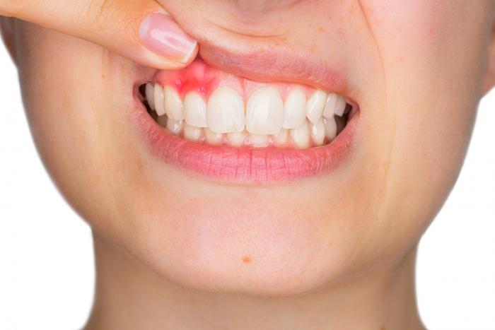 Hướng dẫn cách chăm sóc răng miệng khi bị viêm chân răng