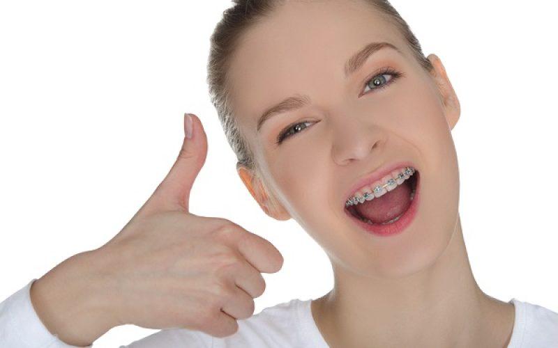 7 vấn đề nên biết trước khi quyết định niềng răng