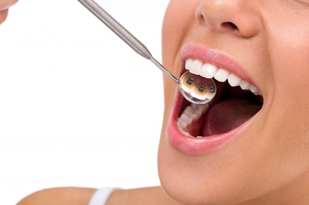 Giải đáp thắc mắc niềng răng mặt lưỡi có bị đau không?