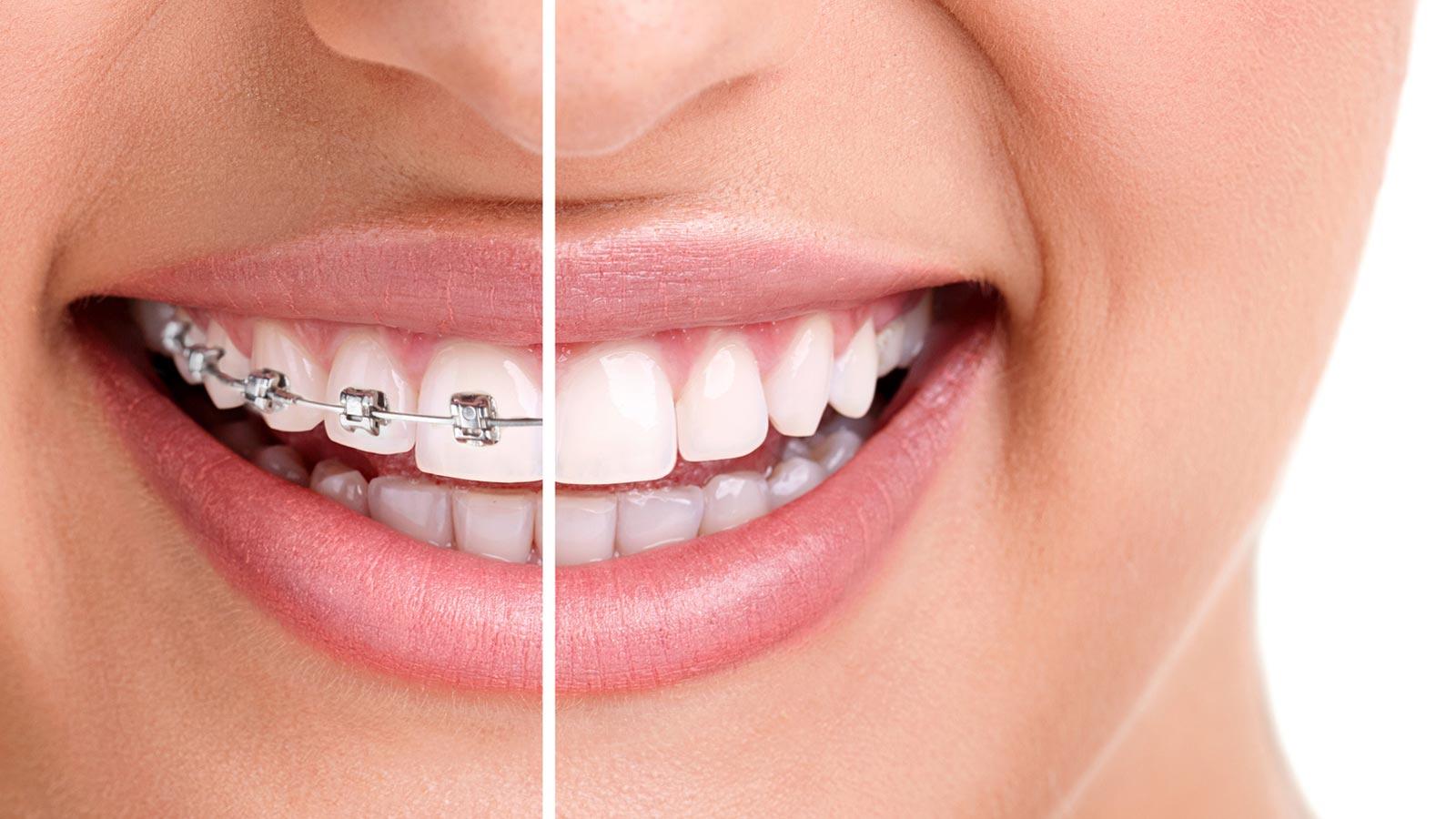 Chi phí niềng răng phụ thuộc vào các yếu tố nào?