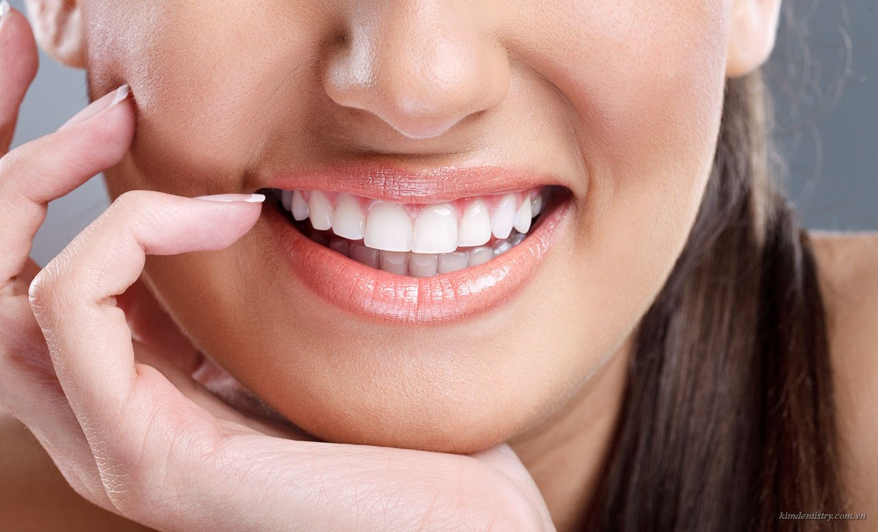 Những ưu điểm vượt trội của phương pháp niềng răng mặt lưỡi
