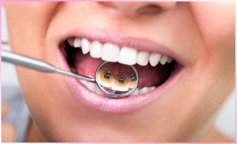 Thông tin cơ bản về niềng răng mắc cài mặt lưỡi