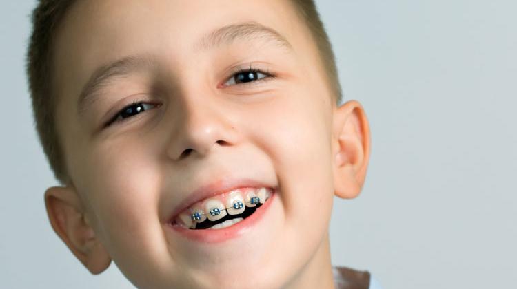 4 câu hỏi thường gặp khi niềng răng cho trẻ em