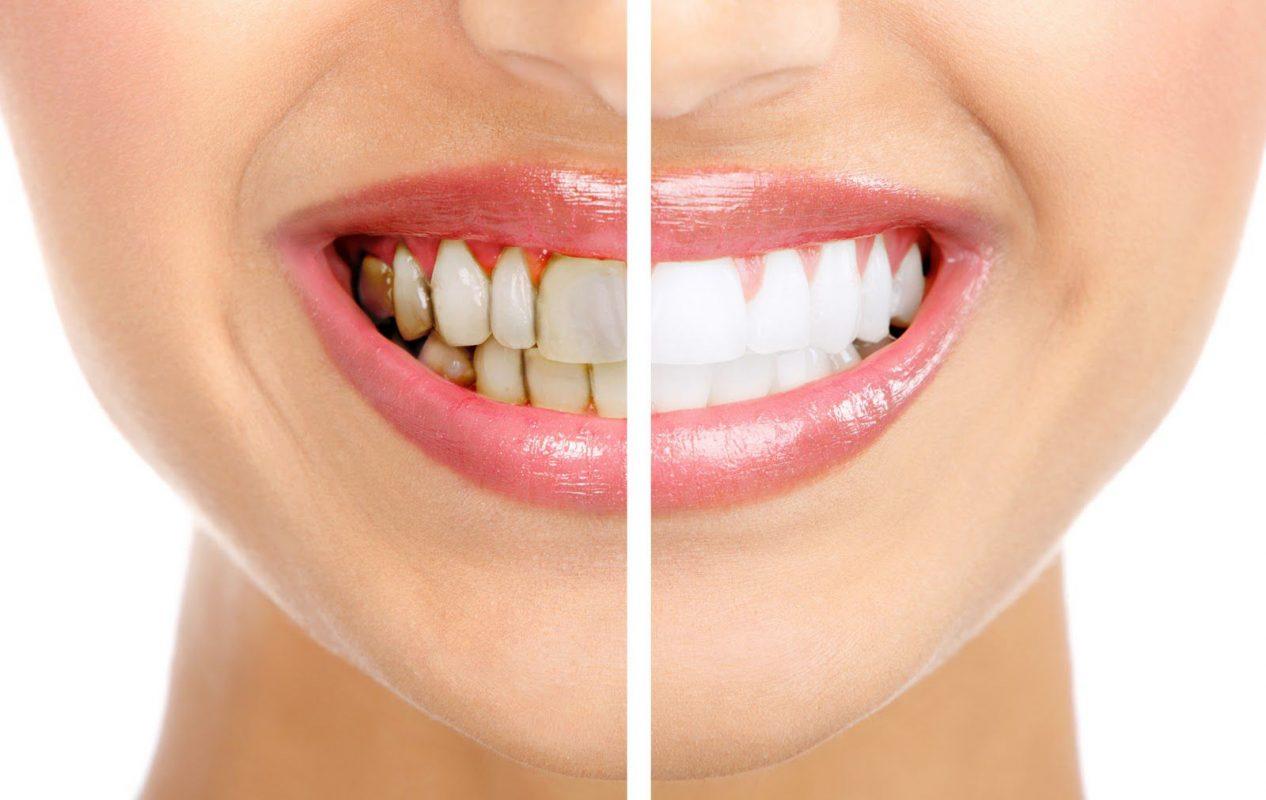 Cùng chuyên gia trả lời những câu hỏi thường gặp sau khi bọc răng sứ
