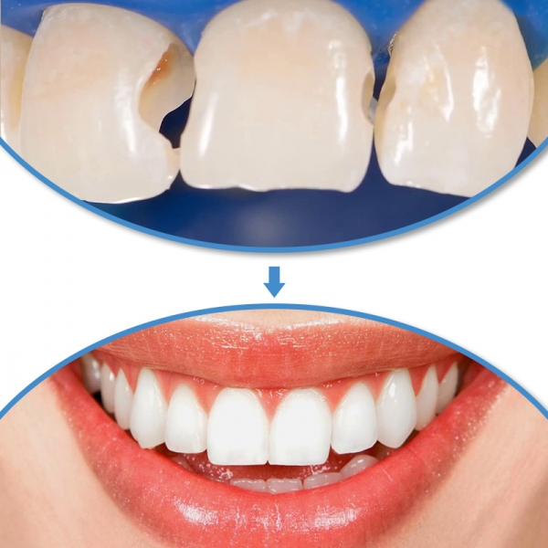Những phương pháp trám răng thường được áp dụng cho răng sâu