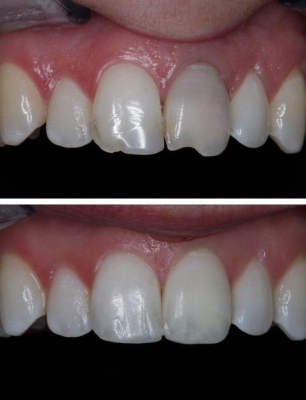 Bác sĩ tư vấn chọn vật liệu trám răng phù hợp cho từng loại răng