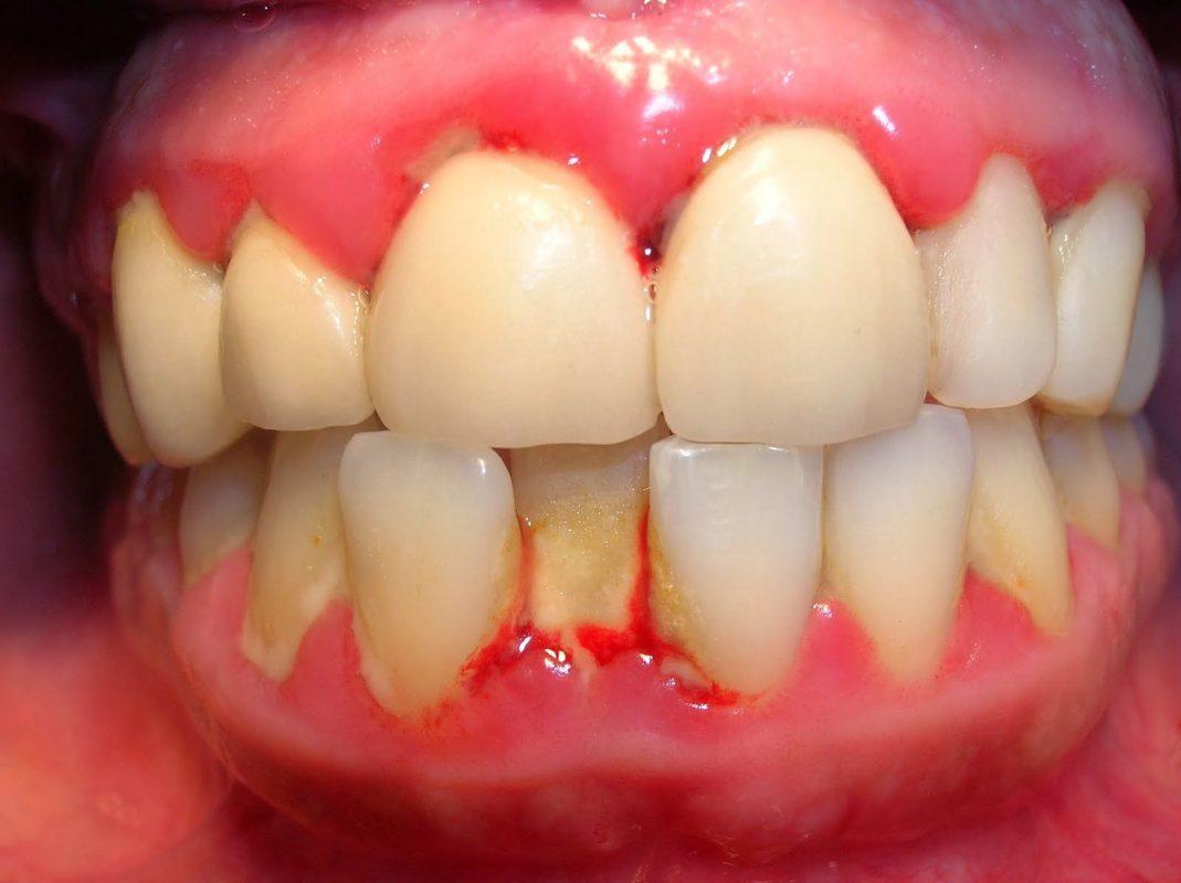 Những nguyên nhân gây bệnh viêm lợi hở chân răng