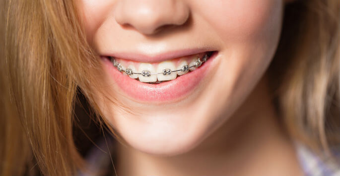 Mách nhỏ cách khắc phục tình trạng ê nhức khi đeo niềng răng