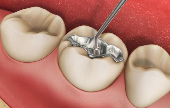 Những biểu hiện nào là bình thường - bất thường sau trám răng?