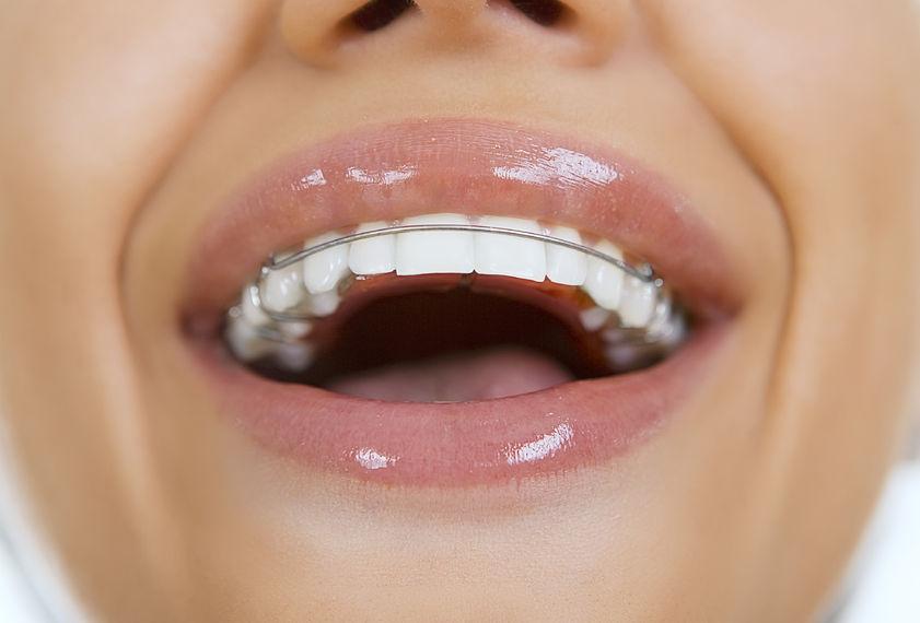 Hàm duy trì sau niềng răng - giải pháp giữ hàm răng đều đẹp mãi mãi