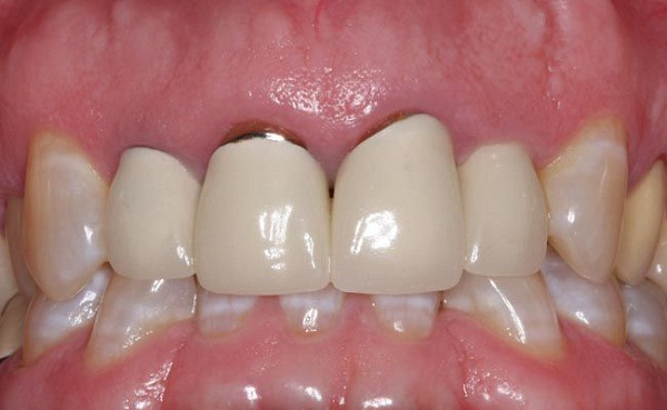 5 nguyên nhân chính gây viêm lợi sau bọc răng sứ
