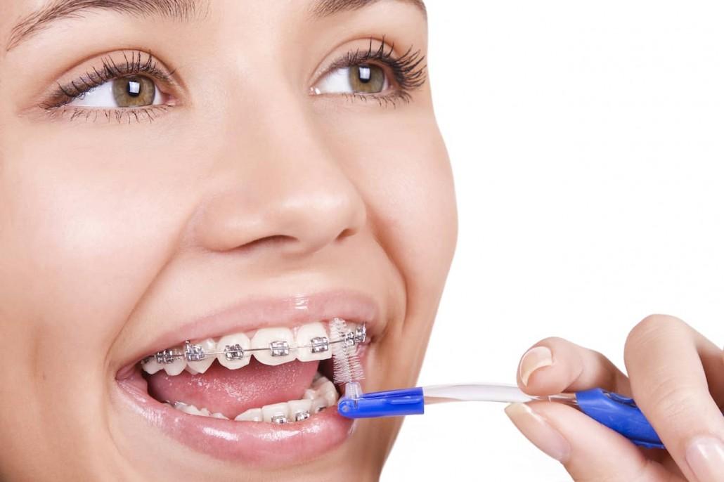 Hướng dẫn đánh răng đúng cách sau chỉnh nha