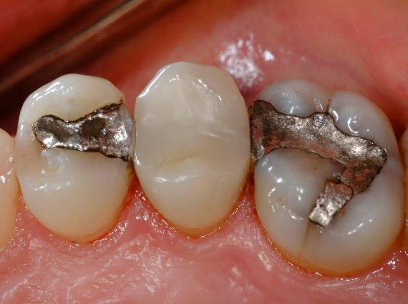 5 nguyên nhân gây đau nhức sau khi trám răng