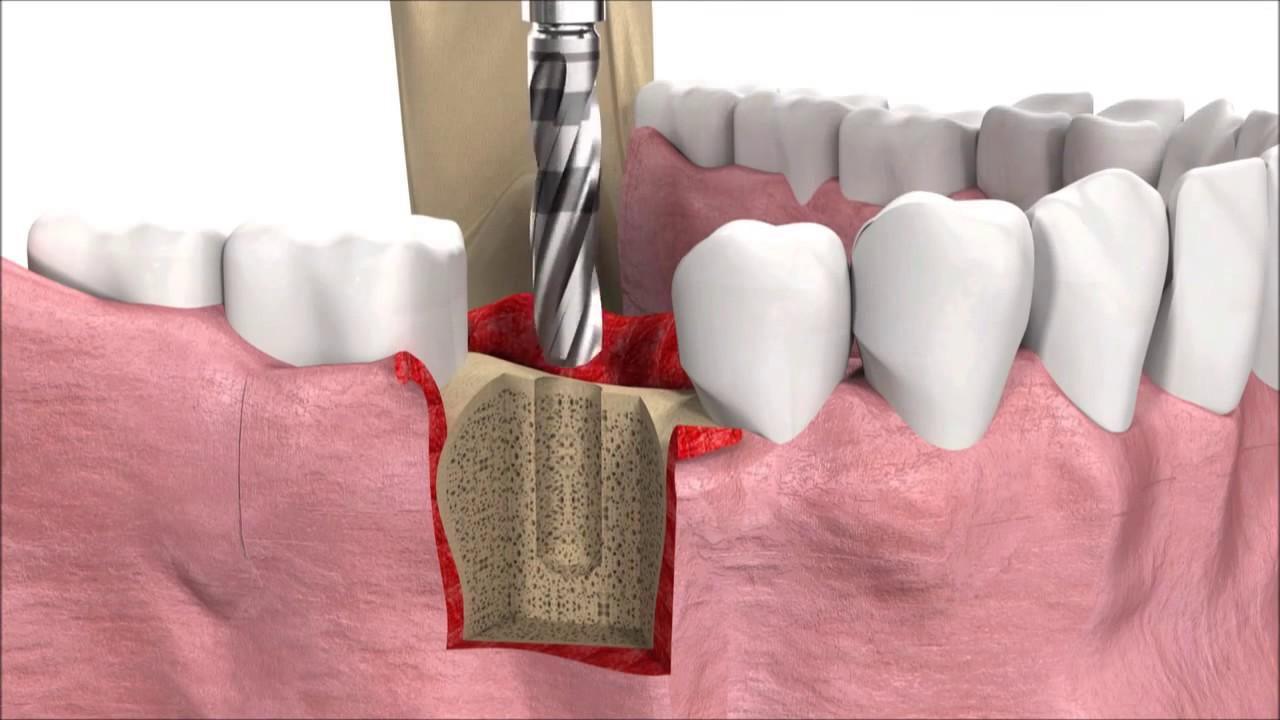 4 yếu tố tác động tới chất lượng cấy ghép implant răng