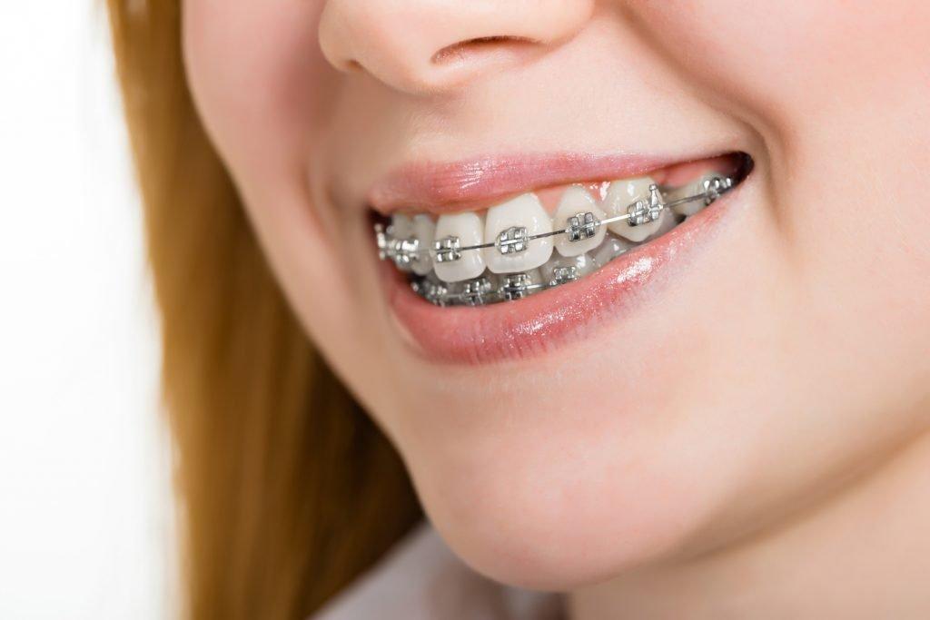 4 giải pháp hữu hiệu cho hàm răng vẩu trở nên đều đẹp hơn