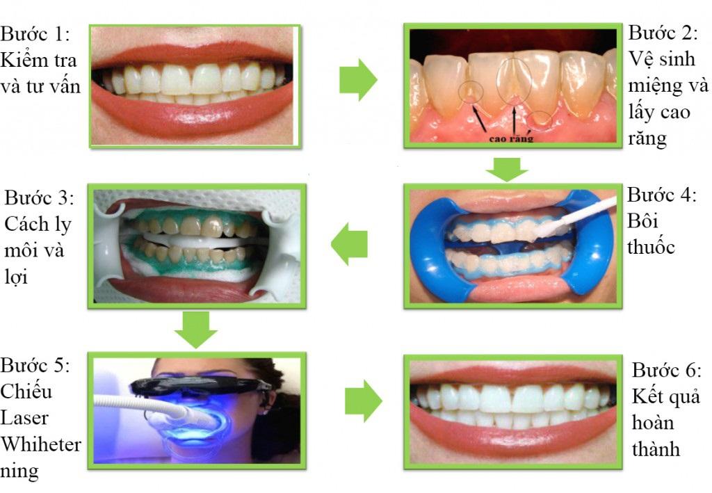 Quy trình tẩy trắng răng chuẩn nhất hiện nay