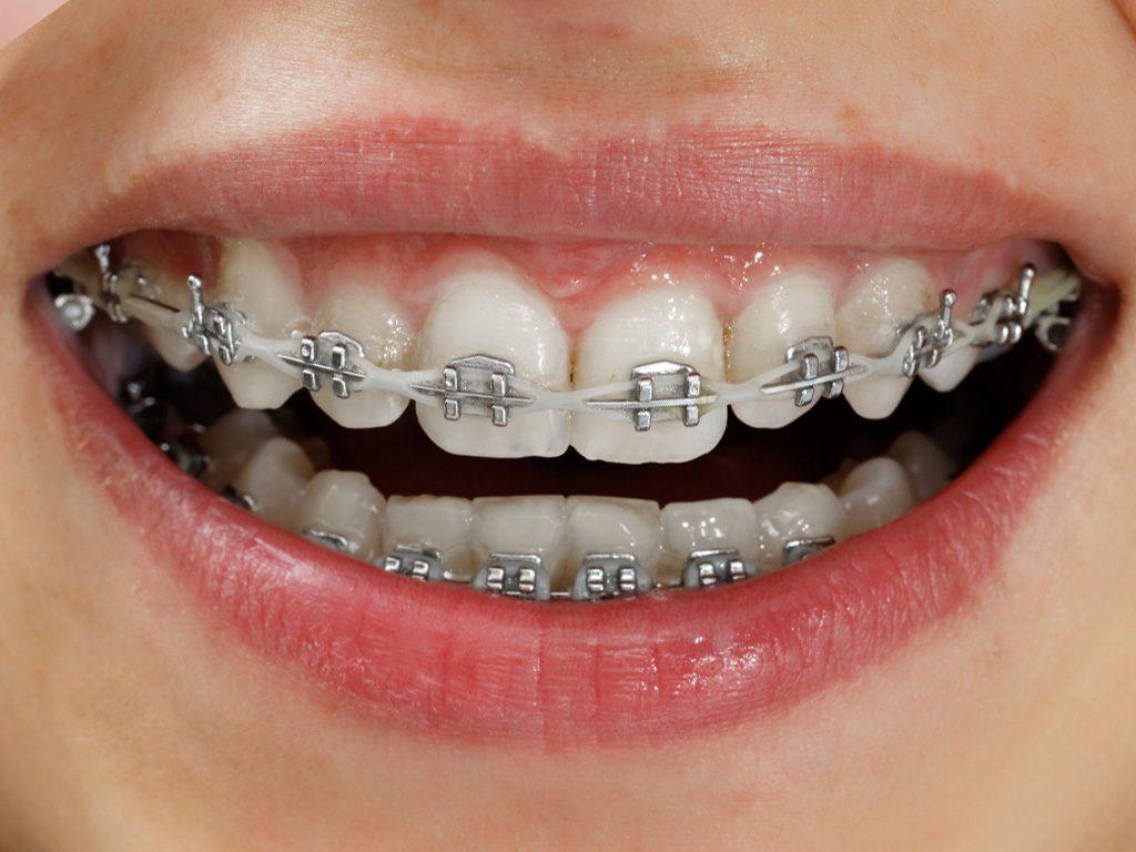 Cách chăm sóc răng niềng chuẩn không cần chỉnh