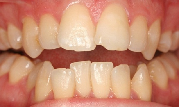 Cách khắc phục tình trạng răng cửa mọc đè lên nhau đẹp nhất hiện nay