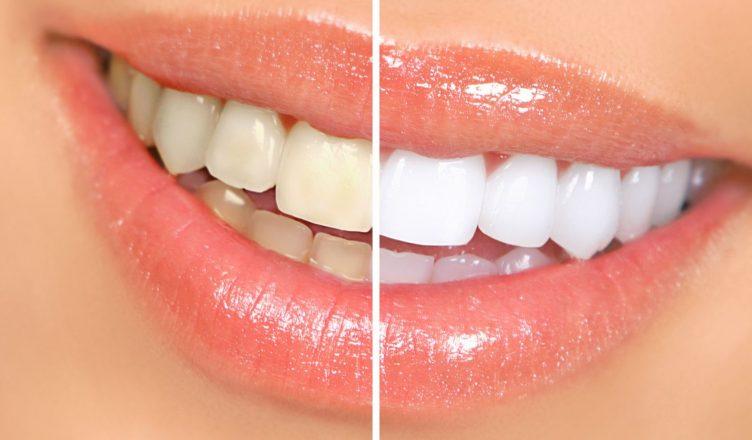 7 sự thật về phương pháp tẩy trắng răng nhất định phải biết