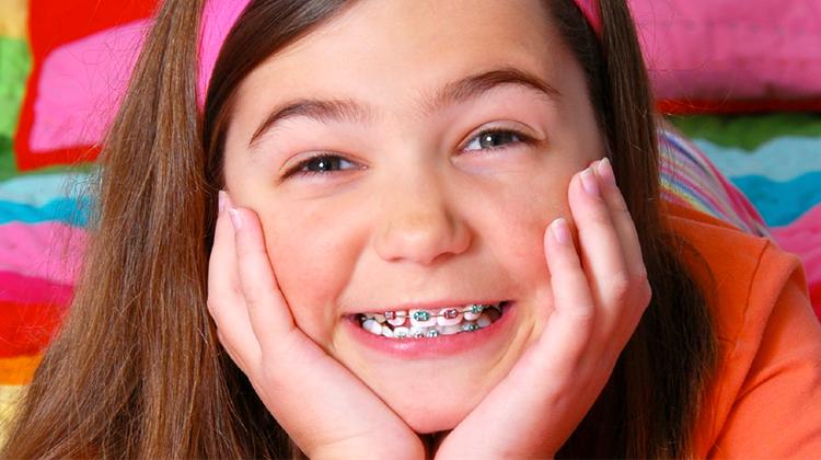 """4 """"thời điểm vàng"""" cho hiệu quả niềng răng cao nhất"""