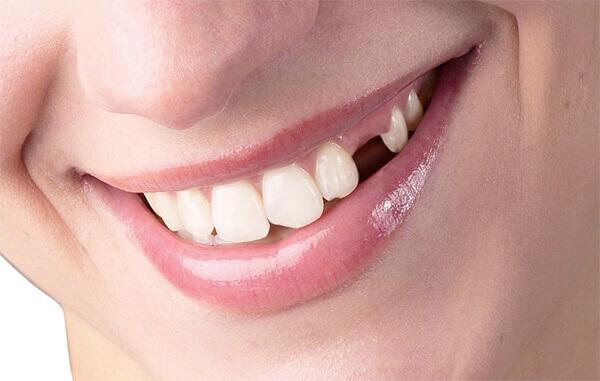 Những điều cần biết về cấy ghép implant sau nhổ răng